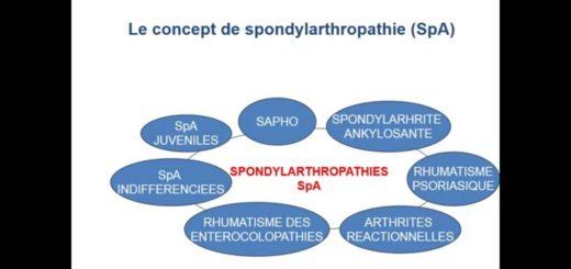 images2spondylarthrite-ankylosante-18.jpg