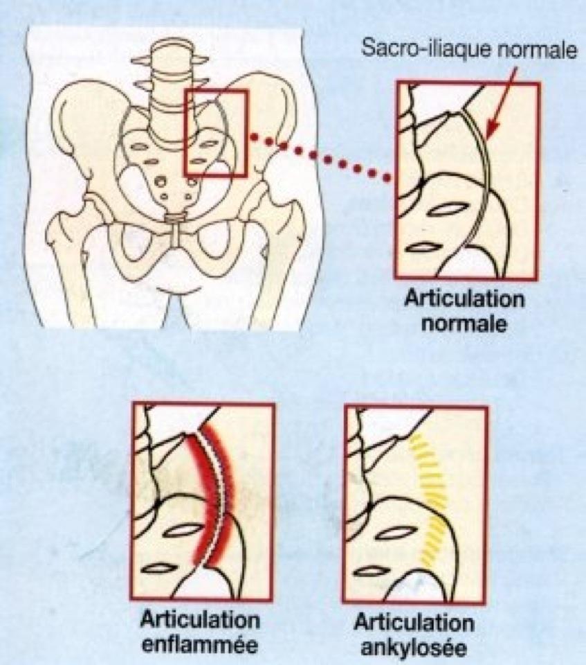 Spondylarthrite ankylosante : la maladie qui touche les articulations